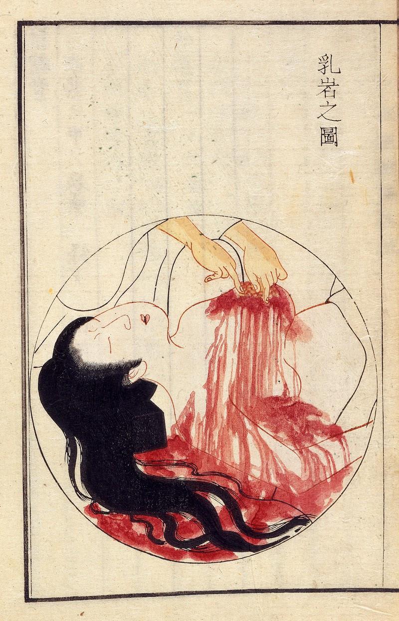 Meme kanseri ameliyatı çizimi, 1804 / Sanatçı: Kamata Keishu / Wellcome Collection
