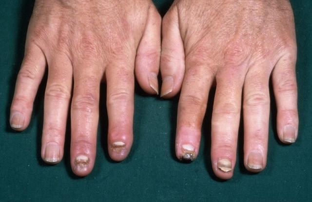 Buerger hastalığı. Foto: Wellcome Images