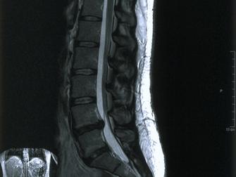 Spinal Disk Hasarı Nedenli Bacak Ve Bel Ağrısında Cerrahi