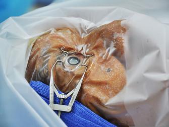 Katarakt Cerrahisinde Ultrasonla Standart Fako-emülsifikasyona Karşı Laser Yardımlı Cerrahi