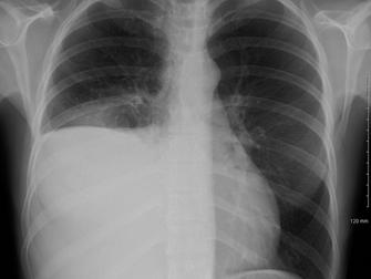 Tüberküloz Plörezi Nedir Ve Kortikosteroidler Nasıl Faydalı Olabilir?