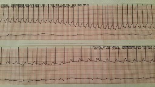 EKG: Tufekci S, Coban A, Bor M, Yasa B, Nisli K, Ince Z - Clin Case Rep (2015)