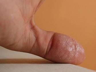 Cerrahi Öncesi Cilt Hazırlığında Siyanoakrilat Mikrop Yalıtıcı İle Sıvama
