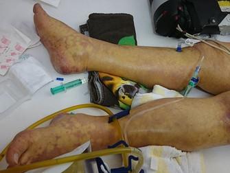 Sepsis Tedavisinde Kortikosteroidler
