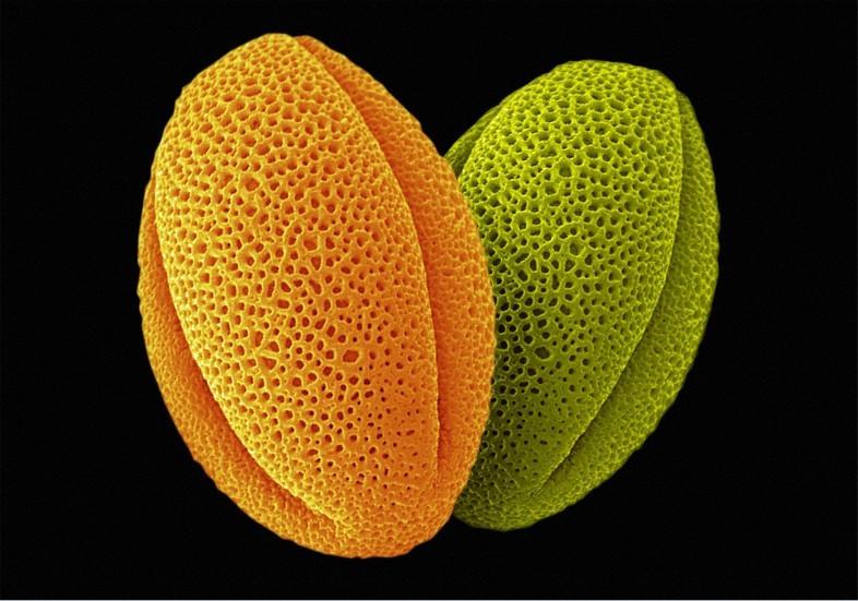 Şakayık poleni. Foto: Annie Cavanagh, Wellcome Images