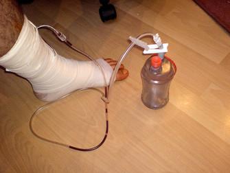 Bacak Arter Ameliyatında Dren