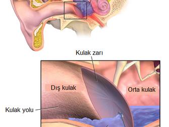 Çocuklarda Kulağa Tüp Yerleştirmeden En Az İki Hafta Sonra Görülen Kulak Akıntısına Karşı Müdahalele