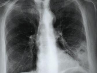 Pulmoner Emboli Tedavisinde Yeni Anti-koagülanlar (DOAK'lar)