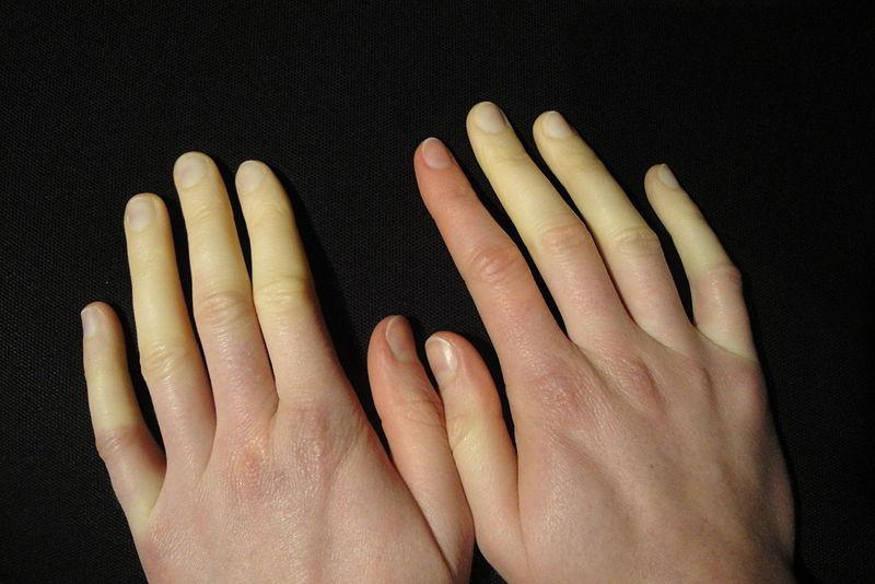 Raynaud fenomeni. Foto: Niklas D / Wikimedia Commons