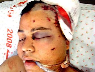 Kafa Travması Nedeniyle Komada Olan Hastanın Kafa İçi Basıncının Düzenli Olarak İzlenmesi Fayda Sağl