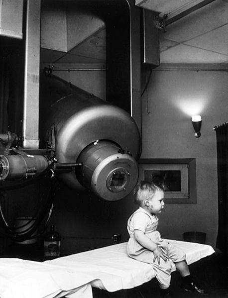 RT ile ilk tedavi ve ilk hasta (retinoblastoma). Foto: National Cancer Institute / Wikimedia Commons