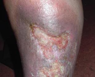 Venöz Bacak Ülserlerinde Sulodeksit