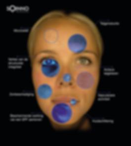 Huidaandoeningen met OBSERV 520.jpg