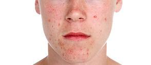Acné behandeling @ Essenz for Skin