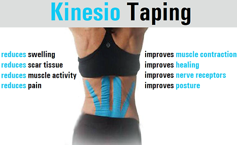kinesio taping, cornelius kinesio taping, soft tissue taping, sports injury taping, sports tape,