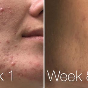 Adult Acne - how I fixed mine super quick!