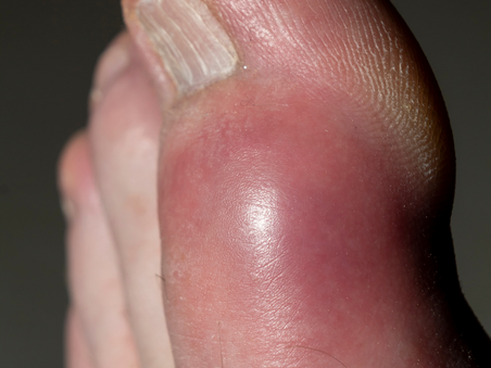 Gota o Hiperuricemia