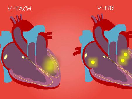¿Qué hacer en caso de sufrir un infarto cuando se está solo?