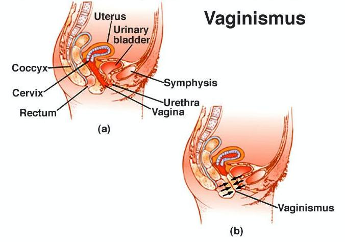Vaginismus anatomy