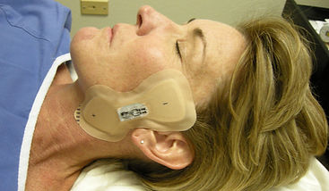 Iontophoresis at PT Specialists
