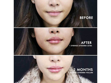Do you want Fuller more luscious lips ?
