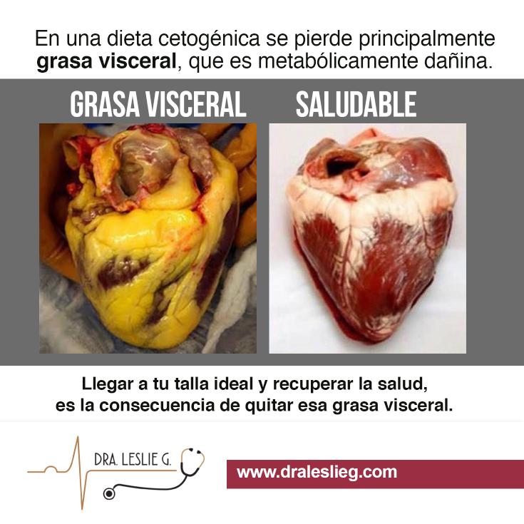 Como perder la grasa visceral