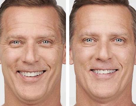 homlok-botox.3jpg.jpg