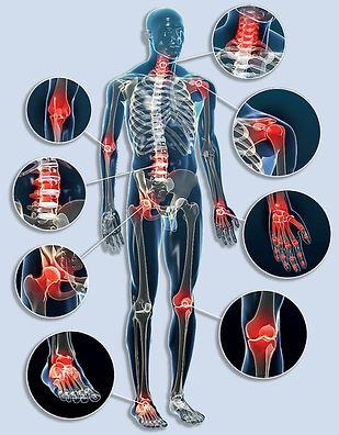 ízületi-gyulladások-reumatológia.jpg