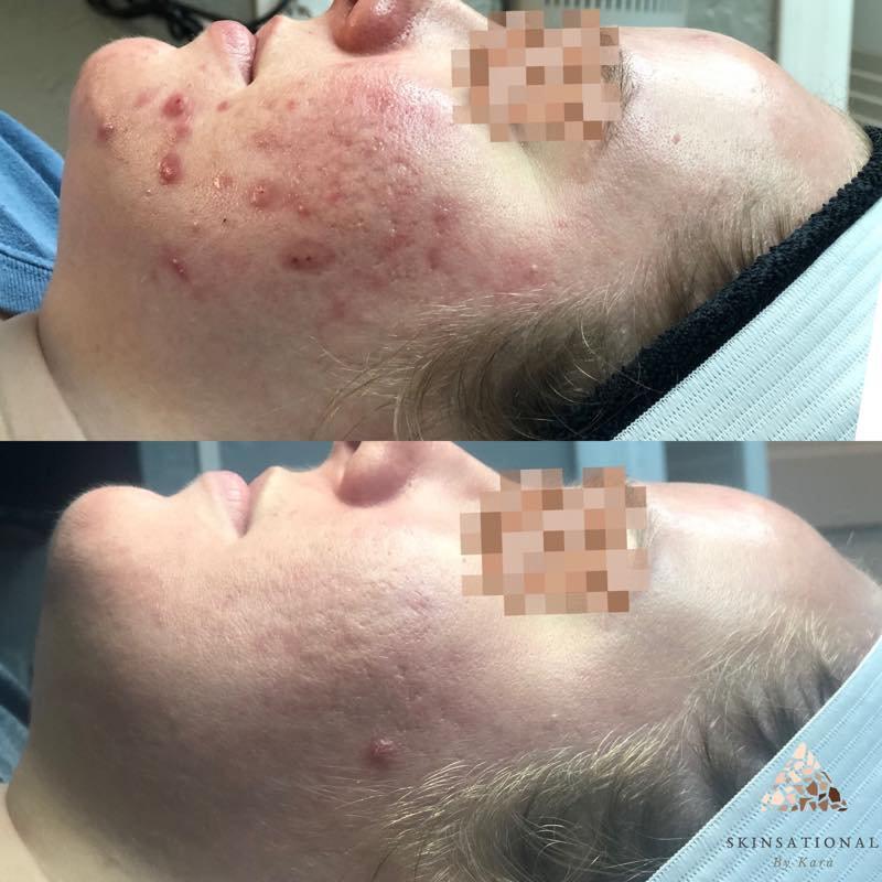 Acne Consult & Treatment