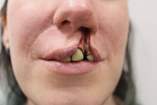 cleft lip.jpg