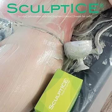 ScupltICE body sculpting