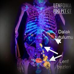 Lenfoma PET CT