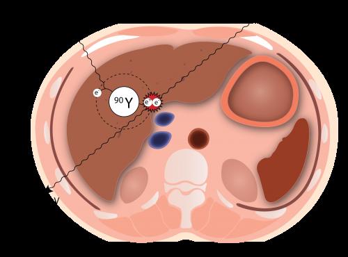 Y90-liver-e1501743718992.png