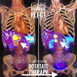 Galyum DOTATATE PET tedavi yanıtı