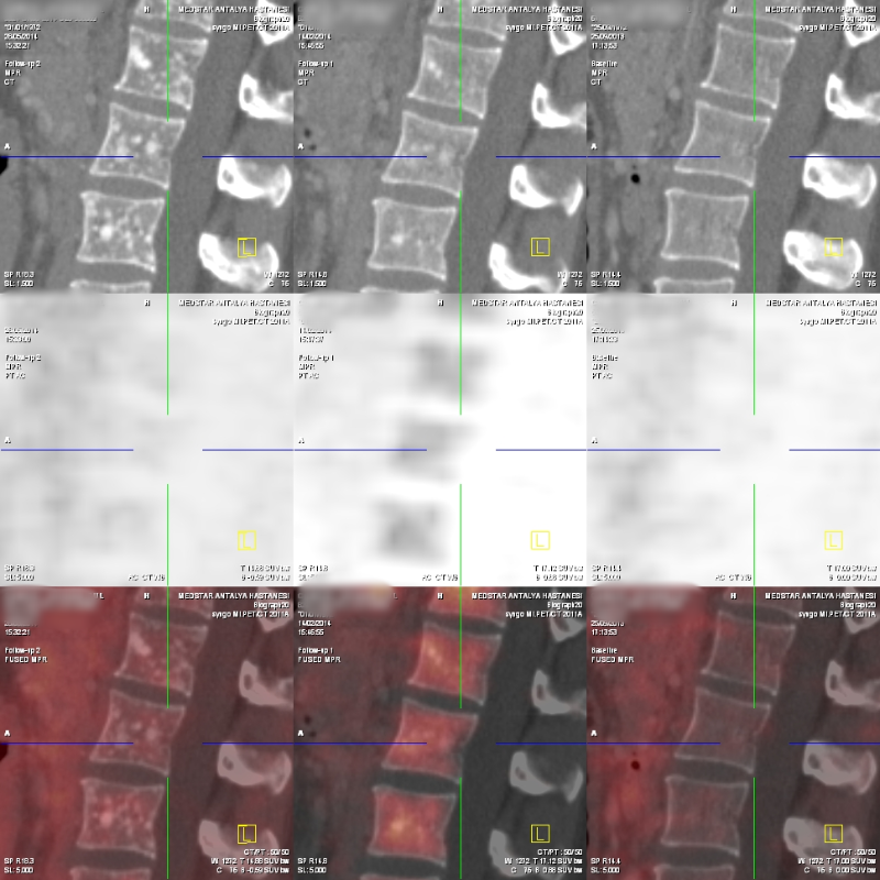 Galyum-68 PET-CT, Nöroendokrin tümör