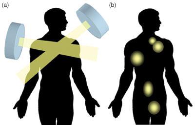 Moleküler ve standart ışın tedavisi