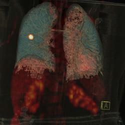 Akciğerde kanser kuşkusu