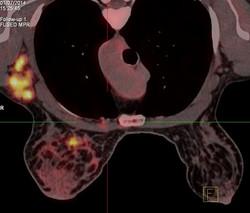PET-CT mamografi