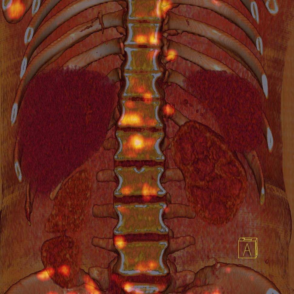 Kemik metastazları