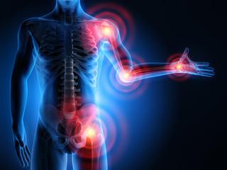 Soulagez vos douleurs d'arthrose avec les huiles essentielles