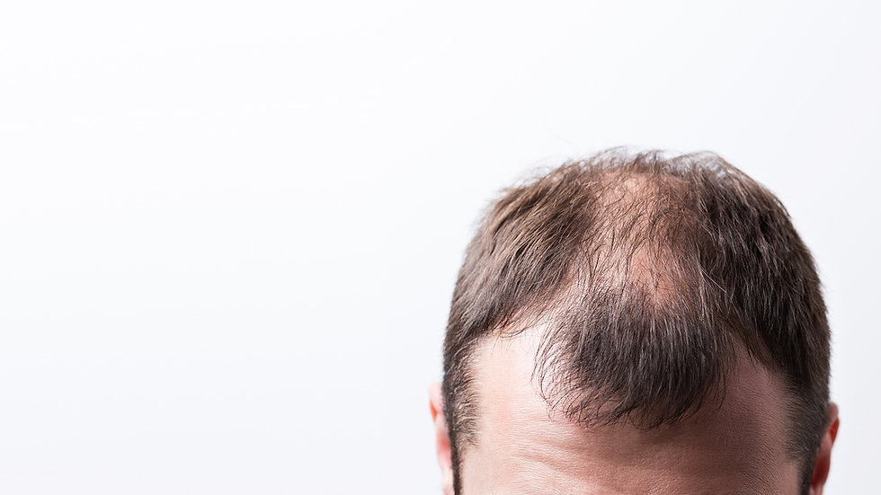 close-up-balding-head-young-man.jpg