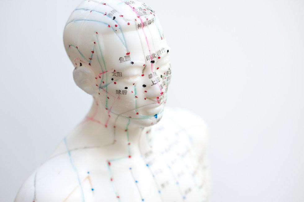 Akupunktur, Liebscher und Bracht, Schröpfen in Haar bei München