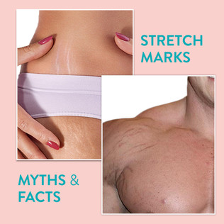 Stretch Marks: Facts and Myths