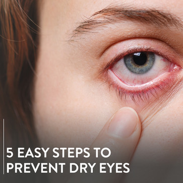 5 easy steps to prevent Dry Eyes