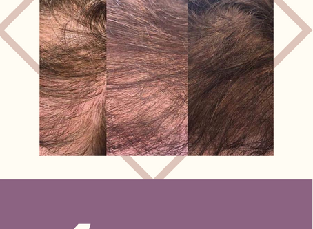 4 Products for Thinning Hair