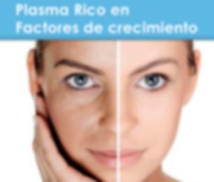 MESOTERAPIA FACIAL PLASMA RICO EN PLAQUETAS PRP