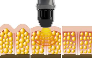 eliminar celulitis dermoplastia AWT