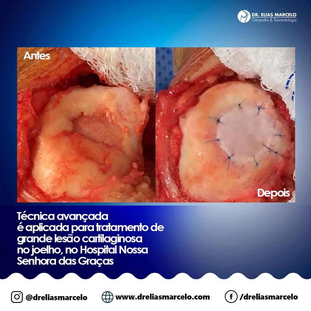 Técnica avançada é aplicada para tratamento de grande lesão cartilaginosa no joelho, no Hospital Nossa Senhora das Graças - Antes e Depois - Dr. Elias Marcelo