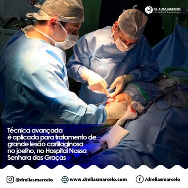 Técnica avançada é aplicada para tratamento de grande lesão cartilaginosa no joelho, no Hospital Nos
