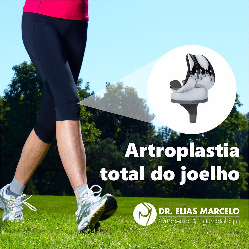 Artroplastia total do joelho